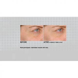 vbeauté Eye Never® Eye Creme   7575981